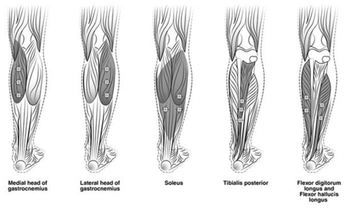 Figure 3: Injection Sites for Adult Lower Limb Spasticity