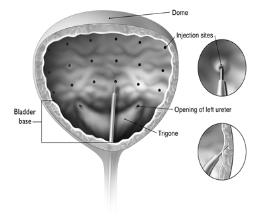 Figure 1:Injection Pattern for Intradetrusor Injections for Treatment of Overactive Bladder and Detrusor Overactivity associated with a Neurologic Condition