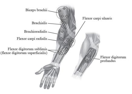 Figure 4: Injection Sites for Pediatric Upper Limb Spasticity